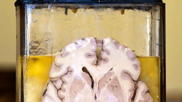 A-very-old-section-of-a-human-brain-preserved-in-formaldehyde-in-a-sealed-glass-container.-The-vintage-piece-was-recently-discovered-in-an-abandoned-mental-hospital.-Shutterstock